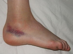 800px-Sprained_foot